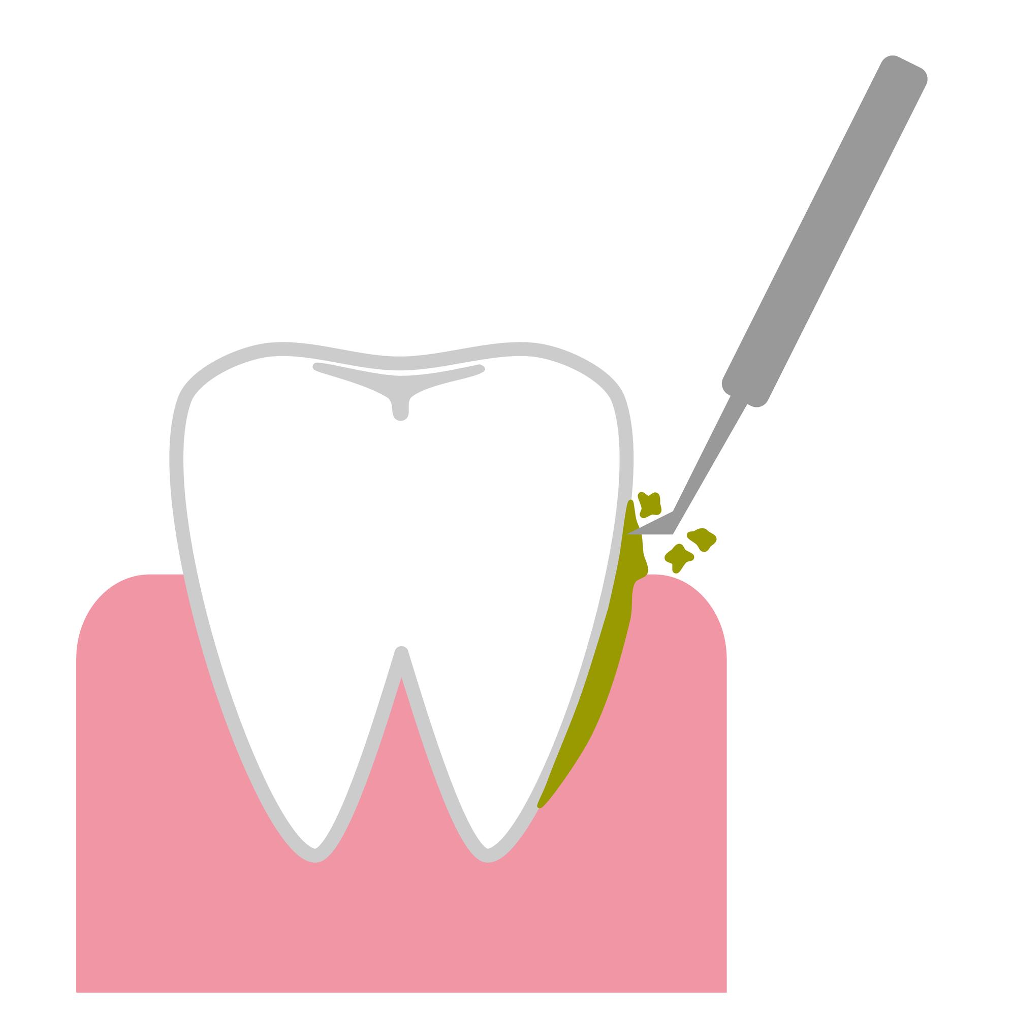 基本歯周治療